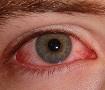 Savjeti i lijekovi za suho oko