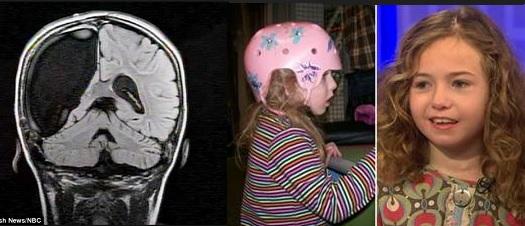 djevojcica bez pola mozga